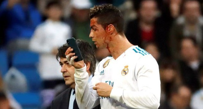 Bloodied Ronaldo Scores Twice in Real Madrid Rout
